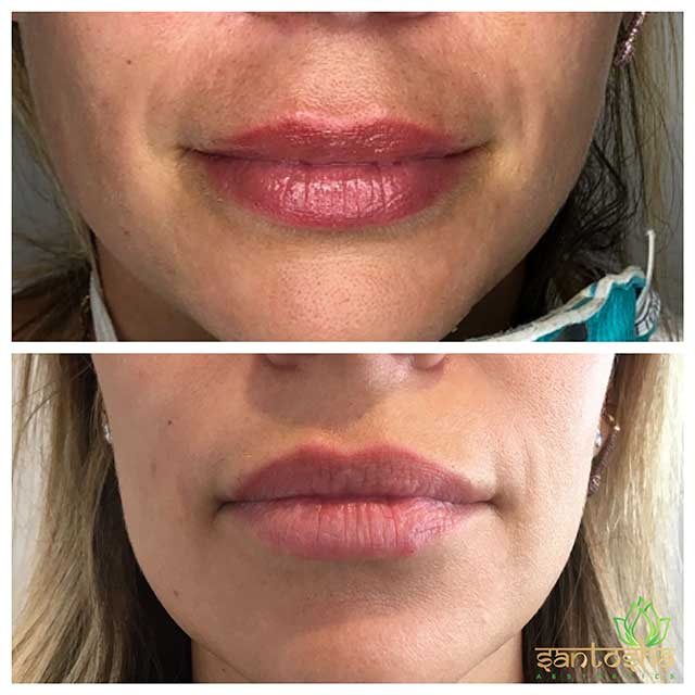 Female lips, before and after Dissolving Fillers treatment, front view, patient 1