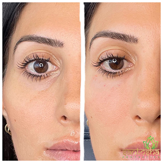 Female lips, before and after Dissolving Fillers treatment, oblique view, patient 4